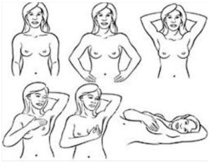 Auto-palpazione del seno